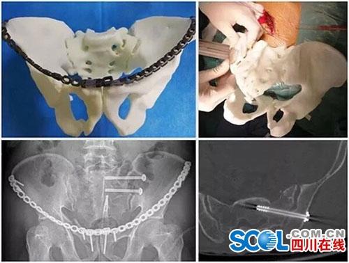 神奇3D打印机 助力自贡医学发展 视点新闻 自贡频道